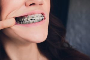 person wearing rubber bands on braces near Woodbridge Township